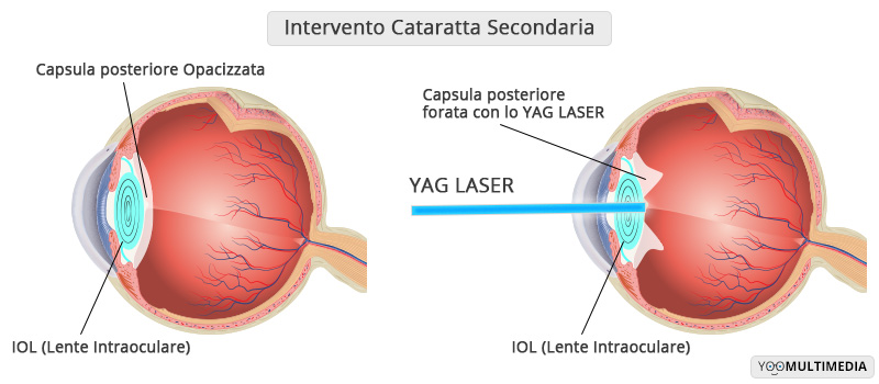 Intervento Cataratta Secondaria - Oculistica Spizzirri